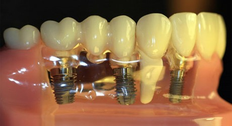 Details on Dental Implant Costs in the UK